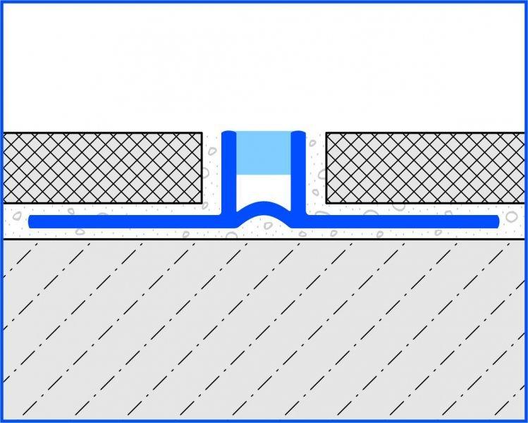 DFP-L schéma